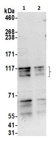 Western blot - Anti-ARHGAP4 antibody (ab226462)