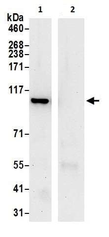 Immunoprecipitation - Anti-MVP antibody - N-terminal (ab226464)