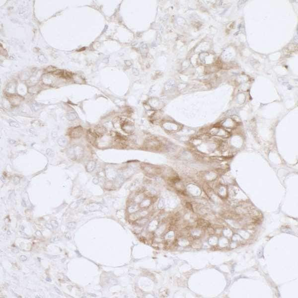 Immunohistochemistry (Formalin/PFA-fixed paraffin-embedded sections) - Anti-MVP antibody - N-terminal (ab226464)