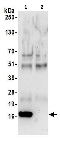 Immunoprecipitation - Anti-Peroxiredoxin 5 antibody (ab226468)