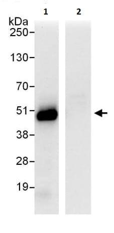 Immunoprecipitation - Anti-Coxsackie Adenovirus Receptor/hCAR antibody (ab226469)