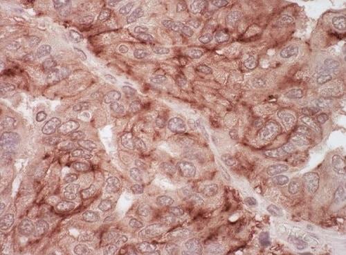 Immunohistochemistry (Formalin/PFA-fixed paraffin-embedded sections) - Anti-Coxsackie Adenovirus Receptor/hCAR antibody (ab226469)