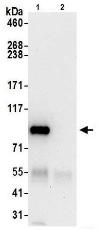 Immunoprecipitation - Anti-Cytosolic Phospholipase A2 antibody (ab226471)