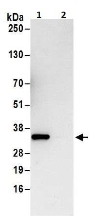 Immunoprecipitation - Anti-Cdk4 antibody (ab226474)