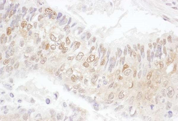 Immunohistochemistry (Formalin/PFA-fixed paraffin-embedded sections) - Anti-Cdk4 antibody (ab226474)