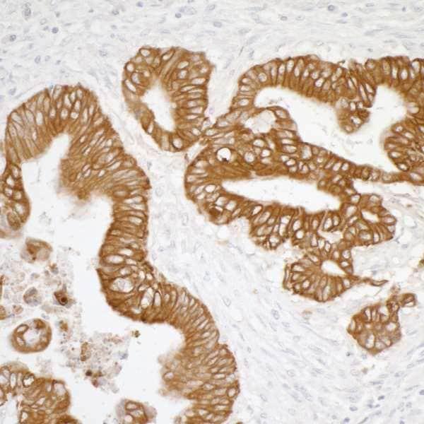 Immunohistochemistry (Formalin/PFA-fixed paraffin-embedded sections) - Anti-pan Cytokeratin antibody [AE1/AE3] (ab226477)
