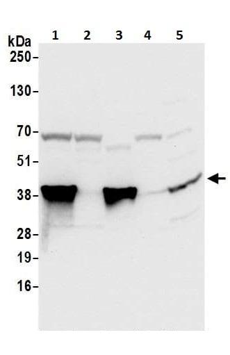 Western blot - Anti-Annexin A1/ANXA1 antibody (ab226478)