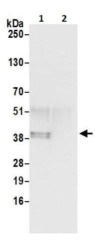 Immunoprecipitation - Anti-Annexin A1/ANXA1 antibody (ab226478)