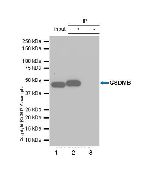 Immunoprecipitation - Anti-GSDMB antibody [EPR20841] - BSA and Azide free (ab226483)