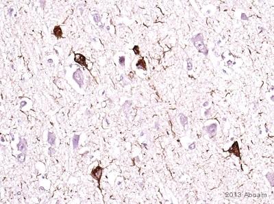 Immunohistochemistry (Formalin/PFA-fixed paraffin-embedded sections) - Anti-Tau (phospho T231) antibody [EPR2488] (ab151559)