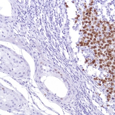 Immunohistochemistry (Formalin/PFA-fixed paraffin-embedded sections) - Anti-Sall4 antibody [SP289] (ab226756)