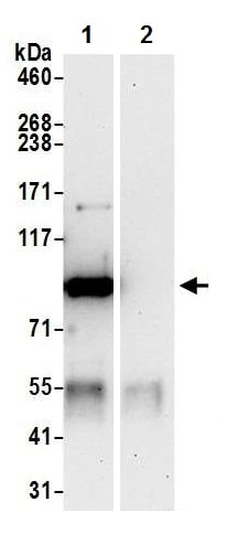 Immunoprecipitation - Anti-Cytosolic Phospholipase A2 antibody (ab226761)