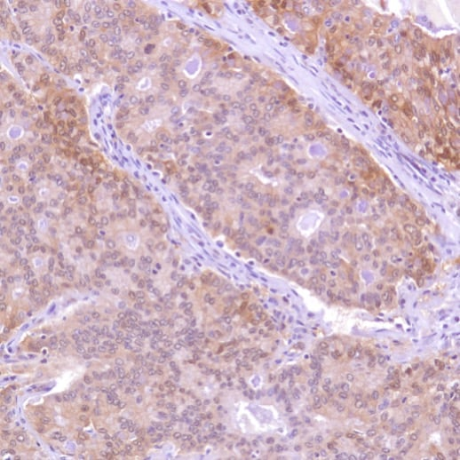 Immunohistochemistry (Formalin/PFA-fixed paraffin-embedded sections) - Anti-Caspase-7 antibody [SP284] - C-terminal (ab226763)