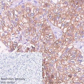 Immunohistochemistry (Formalin/PFA-fixed paraffin-embedded sections) - Anti-PD-L1 antibody [73-10] - BSA and Azide free (ab226766)