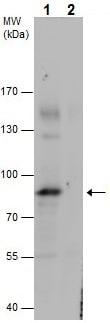 Western blot - Anti-PKC alpha (phospho T497) antibody (ab226785)