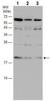 Western blot - Anti-Kisspeptin antibody (ab226786)