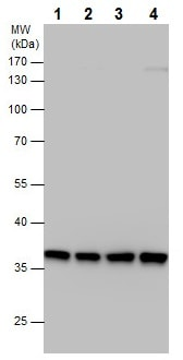 Western blot - Anti-PP2A-alpha antibody - C-terminal (ab226790)