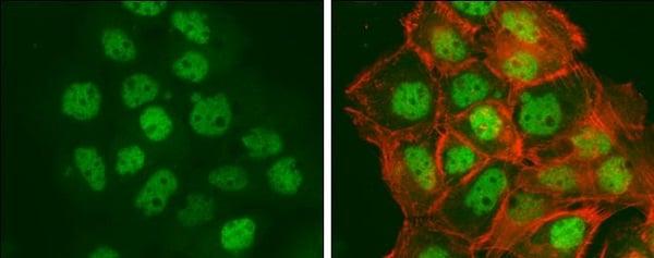 Immunocytochemistry/ Immunofluorescence - Anti-BTF antibody - C-terminal (ab226796)