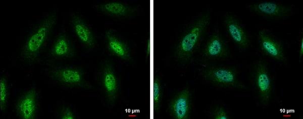 Immunocytochemistry/ Immunofluorescence - Anti-PYK2 antibody (ab226798)