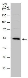 Western blot - Anti-Lyn antibody (ab226802)