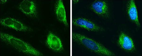 Immunocytochemistry/ Immunofluorescence - Anti-LYRIC/AEG1 antibody (ab226808)