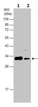Western blot - Anti-RPS6 (phospho S235 + S236) antibody (ab226810)