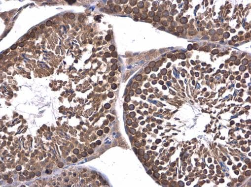 Immunohistochemistry (Formalin/PFA-fixed paraffin-embedded sections) - Anti-DHX36 antibody (ab226813)