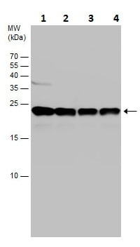 Western blot - Anti-PARK7/DJ1 antibody (ab226827)