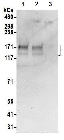 Western blot - Anti-AE2 antibody (ab226829)