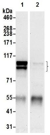 Immunoprecipitation - Anti-Mint-2 antibody (ab226833)