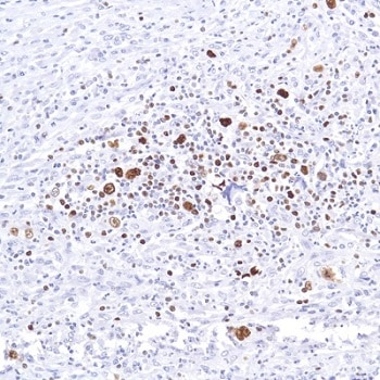 Immunohistochemistry (Formalin/PFA-fixed paraffin-embedded sections) - Anti-SATB1 antibody [SP287] - C-terminal (ab226834)
