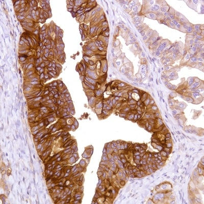 Immunohistochemistry (Formalin/PFA-fixed paraffin-embedded sections) - Anti-CD47 antibody [SP279] (ab226837)