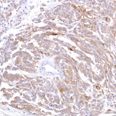 Immunohistochemistry (Formalin/PFA-fixed paraffin-embedded sections) - Anti-Alpha B Crystallin antibody [SP288] (ab226839)