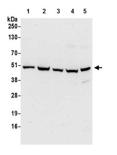 Western blot - Anti-PDIA6 antibody (ab226840)
