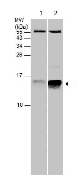 Western blot - Anti-Cystatin C antibody (ab226841)