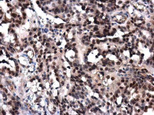 Immunohistochemistry (Formalin/PFA-fixed paraffin-embedded sections) - Anti-POLE antibody - N-terminal (ab226848)