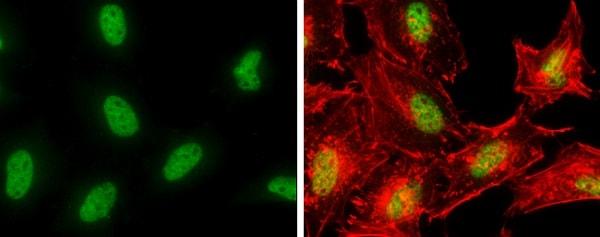 Immunocytochemistry/ Immunofluorescence - Anti-POLE antibody - N-terminal (ab226848)