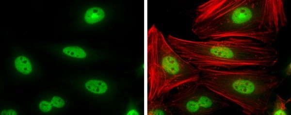 Immunocytochemistry/ Immunofluorescence - Anti-Cyclin T1 antibody (ab226851)