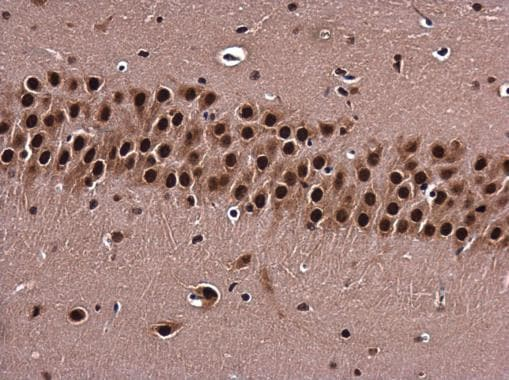 Immunohistochemistry (Formalin/PFA-fixed paraffin-embedded sections) - Anti-BARD1 antibody (ab226854)