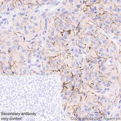 Immunohistochemistry (Formalin/PFA-fixed paraffin-embedded sections) - Anti-NG2 antibody [EPR20244] - BSA and Azide free (ab226865)