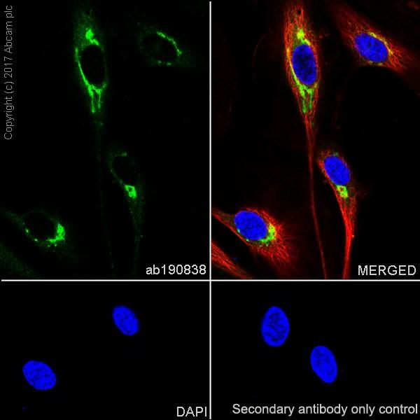 Immunocytochemistry/ Immunofluorescence - Anti-Pentraxin 3/PTX3 antibody [EPR18678-105] - BSA and Azide free (ab226866)
