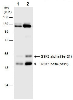 Western blot - Anti-GSK3 beta (phospho S9) + GSK3 alpha (phospho S21) antibody (ab226877)