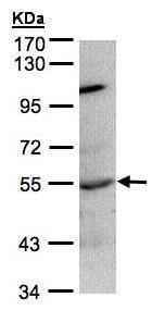 Western blot - Anti-PTP1B antibody (ab226878)