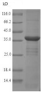 SDS-PAGE - Recombinant Rat Monoacylglycerol Lipase/MGL protein (His tag) (ab226888)