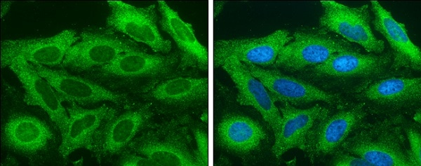 Immunocytochemistry/ Immunofluorescence - Anti-Acetyl Coenzyme A Carboxylase antibody - C-terminal (ab226891)
