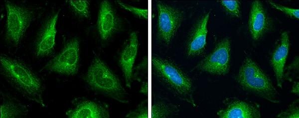 Immunocytochemistry/ Immunofluorescence - Anti-P Glycoprotein antibody (ab226937)