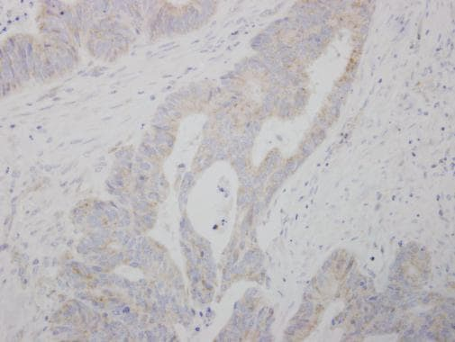 Immunohistochemistry (Formalin/PFA-fixed paraffin-embedded sections) - Anti-COMT antibody (ab226938)