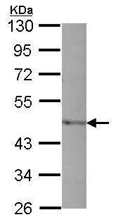 Western blot - Anti-PAI1 antibody (ab226946)