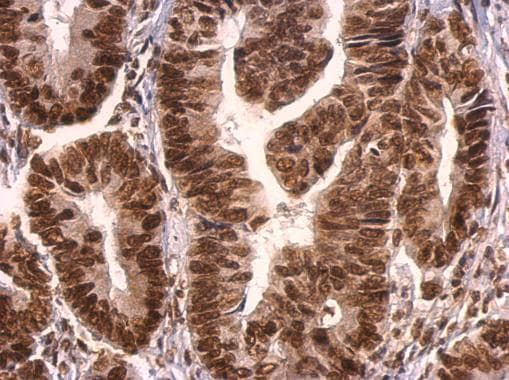 Immunohistochemistry (Formalin/PFA-fixed paraffin-embedded sections) - Anti-GRB2 antibody - C-terminal (ab226951)