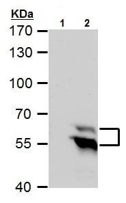 Western blot - Anti-TdT antibody - C-terminal (ab226953)